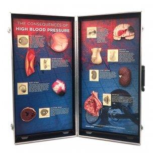 """3D stendas """"Aukšto kraujo spaudimo padariniai"""""""