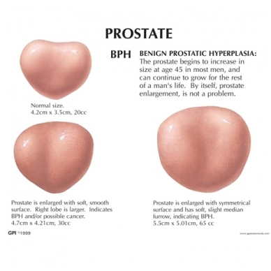 Vyrų dubens modelis su prostata 2