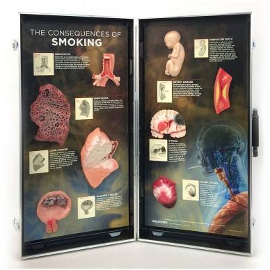 3D rūkymo pasekmių stendas (anglų k.)