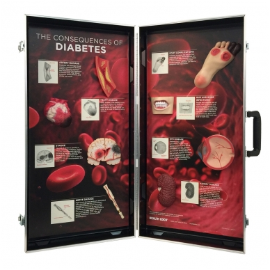 "3D stendas ""Diabeto pasekmės"""