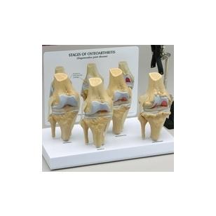 4-ių stadijų, osteoartrito paveikto, kelio modelių rinkinys