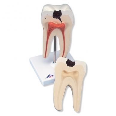 Apatinio krūminio danties su dviguba šaknimi ir įdubomis modelis, 2 dalys
