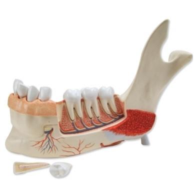 Priešakinė apatinio žandikaulio pusė su 8 nesveikais dantimis, 19 dalių