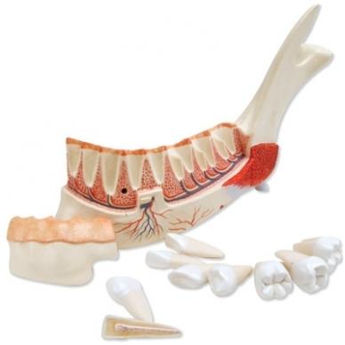 Priešakinė apatinio žandikaulio pusė su 8 nesveikais dantimis, 19 dalių 2