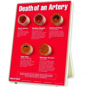 """Stovas """"Arterijų mirtis"""""""