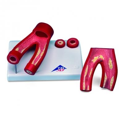 Aterosklerozės modelis su skerspjūvine arterija, 2 dalys 2
