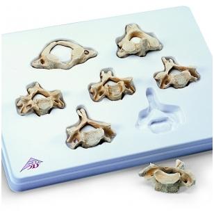 BONElike™ medžiagos kaklo slankstelių rinkinys, 7 pavyzdžiai