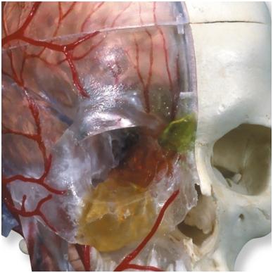 BONElike™ medžiagos žmogaus kaukolės modelis su smegenimis ir stuburo dalimi (viena pusė permatoma, o kita – kaulinga) 5