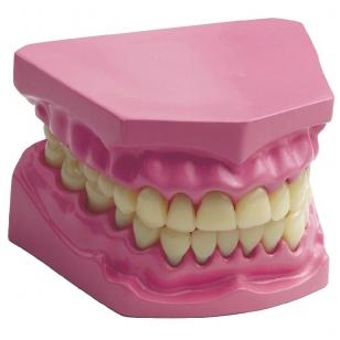 Dantų modelis