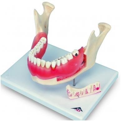 Dantų ligų modelis, 21 dalis (padidintas 2 kartus)