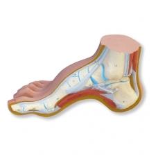 Gaubtos pėdos (Pes Cavus) modelis