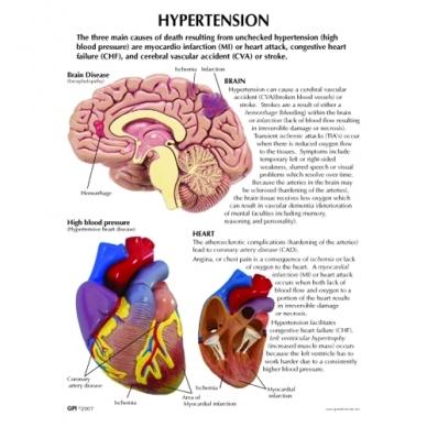 Hipertenzijos mini modelių rinkinys 2