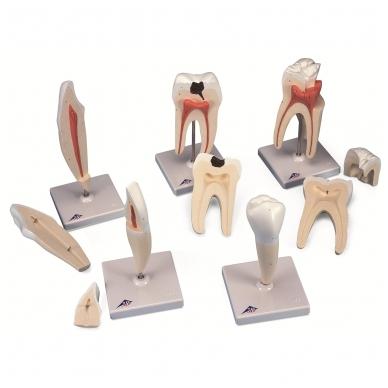 Klasikinės serijos dantų modeliai, 5 pavyzdžiai