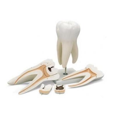 Milžiniškas krūminis dantis su ėduonimi (padidintas 15 kartų), 6 dalys