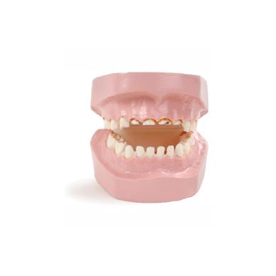 """Modelis """"Kūdikių dantų ėduonis - maitinimo buteliuku pasekmė"""""""