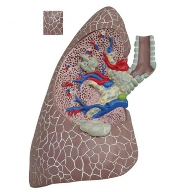 """Modelių rinkinys """"Plaučiai su patologijomis"""" 2"""