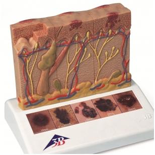 Odos vėžio modelis