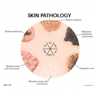Odos patologijos modelis 2