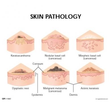 Odos patologijos modelis 3