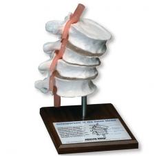 Osteoporozės stuburo modelis