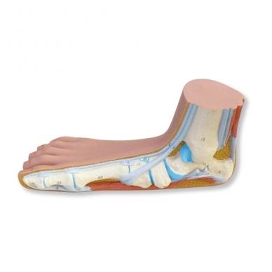 Pilnapadės pėdos (Pes Planus) modelis