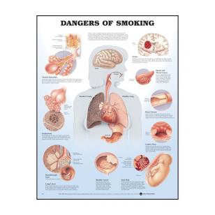 """Plakatas """"Rūkymo žala"""""""