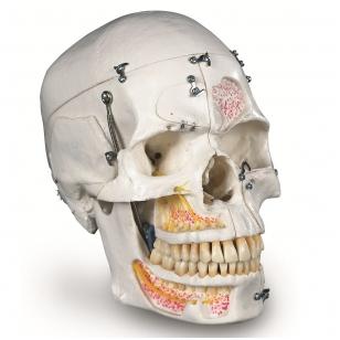 Prabangus demonstracinis žmogaus dantinės kaukolės modelis, 10 dalių