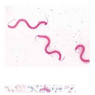 """Preparatų rinkinys mikroskopui  """"Bakterijos"""",  25 vnt."""