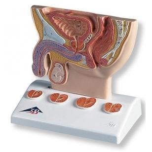 Prostatos modelis