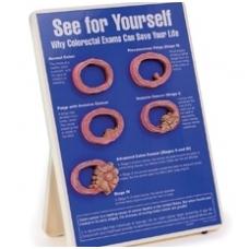 """Stovas """"Pasitikrink: kodėl gaubtinės ir tiesiosios žarnos tyrimas gali išgelbėti tavo gyvybę"""""""