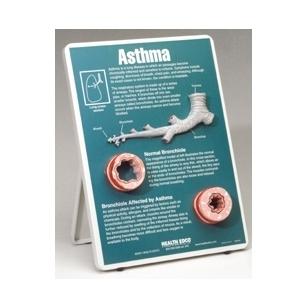 "Stovas ""Astma"""