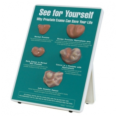 """Stovas """"Išsitirk pats: kodėl prostatos tyrimai gali išgelbėti tavo gyvybę!"""""""