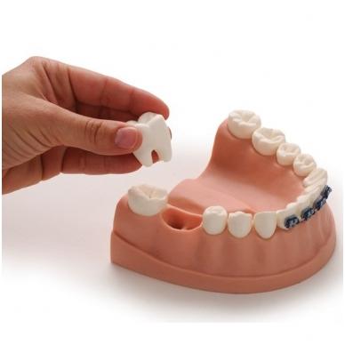 Sveikų dantų modelis
