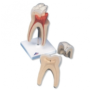 Viršutinio krūminio danties su triguba šaknimi modelis, 3 dalys